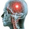 View Case Study: Redesigning Emergency Stroke Pathways to Maximise Thrombolysis Rates